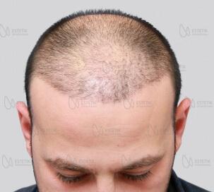 Органическая пересадка волос